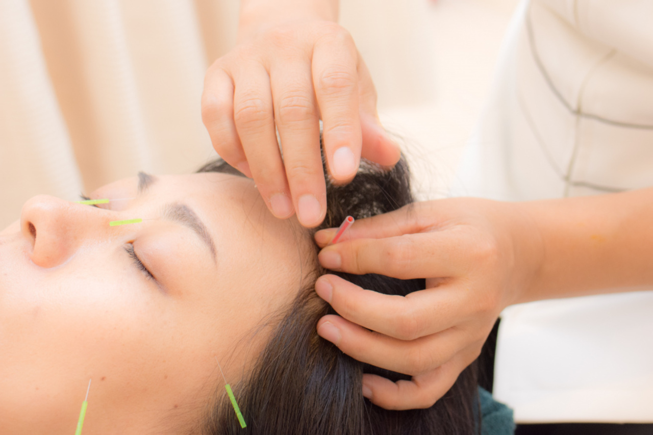 Prtree掲載記念 美容鍼灸キャンペーン!