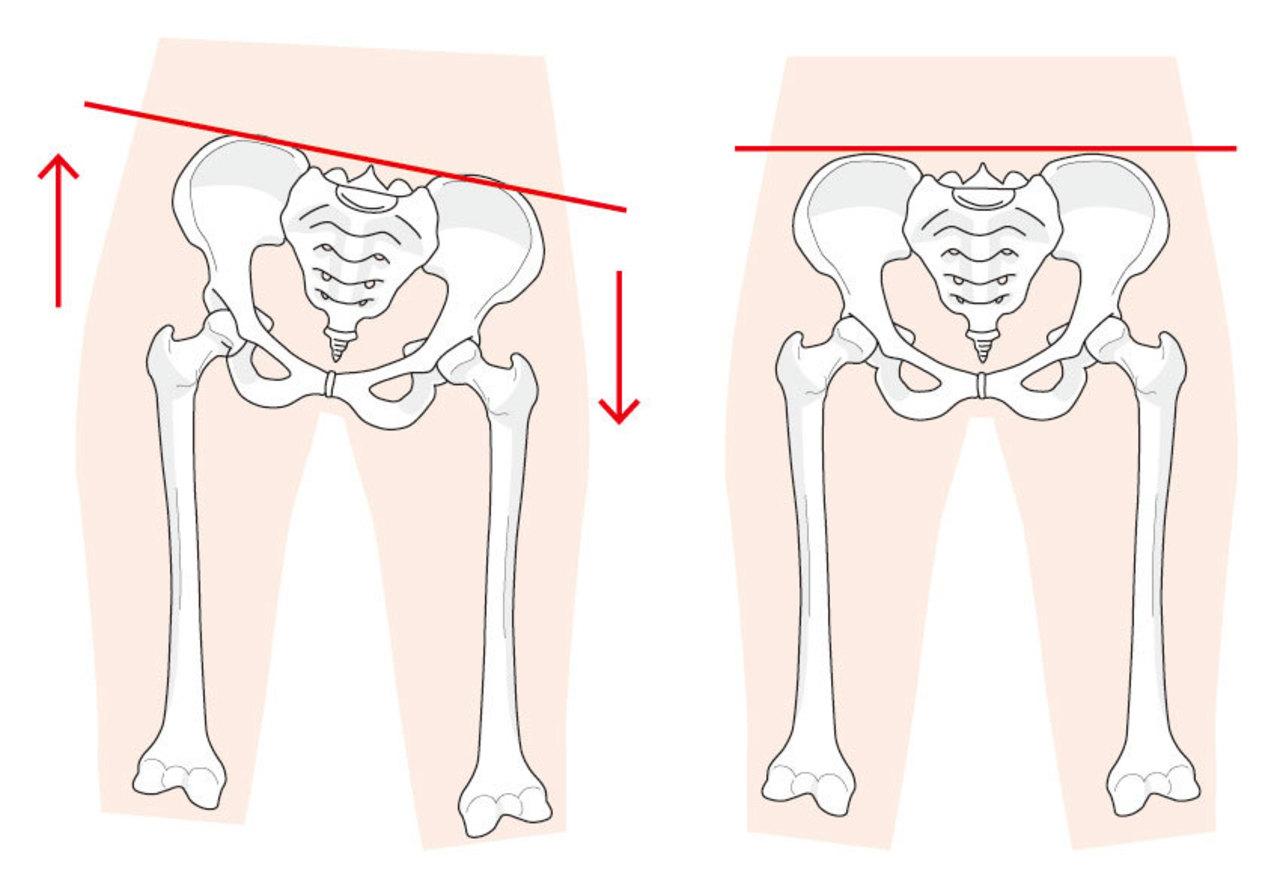 「足を組む」と、骨盤が歪みますよ!