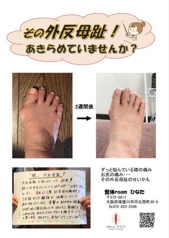 """<p>歩くたびに痛い外反母趾</p> <p>もう昔からだから…と諦めていませんか?</p> <p></p> <p>外反母趾は放っておくとひどくなる一方で</p> <p>足先の痛みだけではなく膝や腰などにも悪影響を及ぼします。</p> <p>年齢を重ねてもいつまでも自分足で歩いて生活できるよう</p> <p>改善していきましょう。</p> <p><a href=""""https://www.facebook.com/1333404226673943/posts/2306603886020634/"""">https://www.facebook.com/1333404226673943/posts/2306603886020634/</a></p> <p></p> <p></p> <p style=""""margin: 0px; font-stretch: normal; font-size: 17px; line-height: normal; font-family: '.Hiragino Kaku Gothic Interface'; color: #454545;""""></p> <p style=""""margin: 0px; font-stretch: normal; font-size: 17px; line-height: normal; font-family: '.Hiragino Kaku Gothic Interface'; color: #454545;""""></p> ()"""